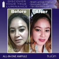 Atasi Keriput Wajah | Pengganti Cream Jerawat Praktis