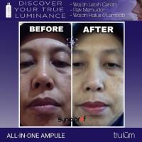 Obat Jerawat Paling Ampuh Dan Alami | Skincare Anti Aging Paling Ampuh