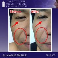 Cream Penghilang Keriput Wajah | Trulum Penghilang Keriput Wajah Cepat