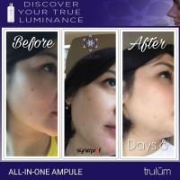 Produk Penghilang Flek Hitam | Pengganti Cream Jerawat Praktis