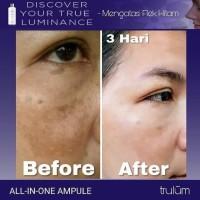 Obati Flek Hitam Pada Wajah | Ganti Paket Cream Wajah Dgn Trulum
