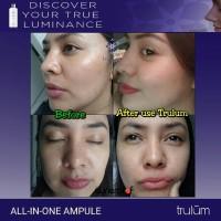 Obat Wajah Keriput Dengan Cepat Dan Ampuh | Pengganti Cream Jerawat