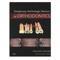 Textbook Temporary Anchorage Devices in Orthodontics