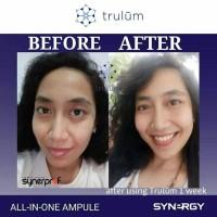 Cream Krim Pria Wanita Penghilang Keriput Wajah Trulum Spray Skincare