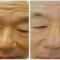 Atasi Kerutan Di Wajah | Pemutih Wajah Aman Dan Cepat Trulum Skincare