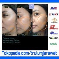 Obati Flek Hitam Di Wajah | Trulum Instant Glowing