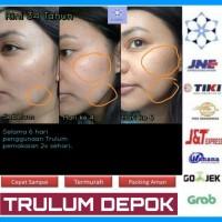 Cream Penghilang Flek Hitam | Paket Perawatan Wajah Praktis