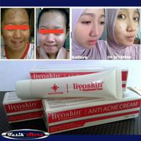 Liyoskin Anti Acne - Obat Salep Jerawat Pasir - Batu - Bisul -Punggung