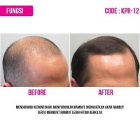 Terlaris Buy 1 Get 1 Free Hair Tonic Kemiri Bmks Obat Penumbuh Rambut