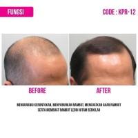 Terbaru Hair Tonic Kemiri Bmks Obat Penumbuh Rambut Berkualitas