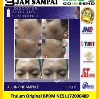 Hilangkan Flek Hitam Di Wajah | Pemutih Wajah Aman Dan Cepat