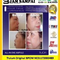 Flek Hitam Di Wajah | Pengganti Cream Jerawat Praktis
