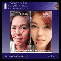 Trulum Serum 5 in 1 Cream Pemutih Wajah Aman Dan Bagus LIMITED EDITION