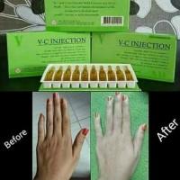 VC Injection Ori Vesco