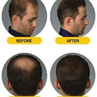Promo Obat Penumbuh Rambut Botak Rontok Hair Tonic Tonicum Original
