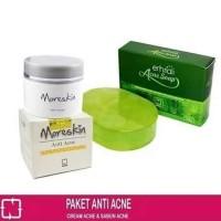 Paket Jerawat Nasa Cream Acne & Sabun Acne