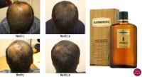 Kaminomoto Hair Growth Accelerator 150 ml