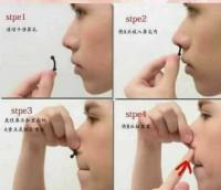 Alat Pemancung Hidung tanpa Operasi