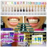pemutih gigi real you Original - alat pemutih gigi praktis