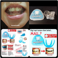 TRAINER ALIGNMENT - ORTHODENTIC RETAINER TEETH - PERATA PERAPI GIGI