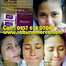 Distributor Amoorea