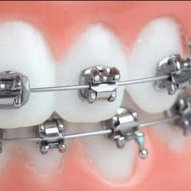 supplier dental behel
