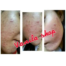 Vanila skincare