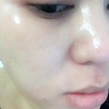 Fallery Skincare