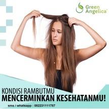 Penumbuh Rambut Botak