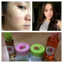 Aprielola Skincare