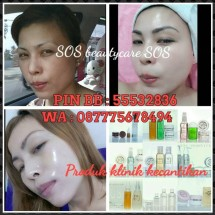 sos beautycare