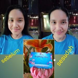 Jual Sabun Kedas Beauty Brightening Soap Pemutih Kulit Kota Surabaya Amily Surabaya Tokopedia
