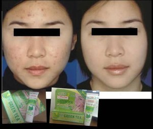 2 days  green tea acne cream