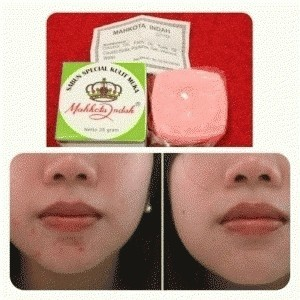 Mahkota indah acne