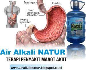 Air Alkali Natur, Air Kesehatan Terapi Asam Lambung