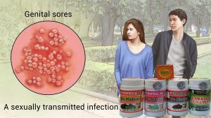 Obat herpes de nature ampuh