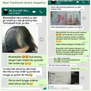 Jual Hair Serum Penumbuh Rambut Ampuh& Vitamin Obat Botak Anti DHT Tercepat  - Kota Surabaya - greenangelica store | Tokopedia