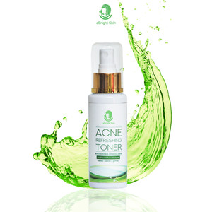 Acne Refreshing Toner 100ml
