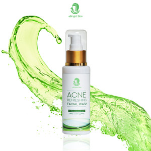 Acne Refreshing Facial Wash 100ml
