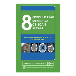 EGC 8 Prinsip Dasar Membaca CT-Scan Kepala