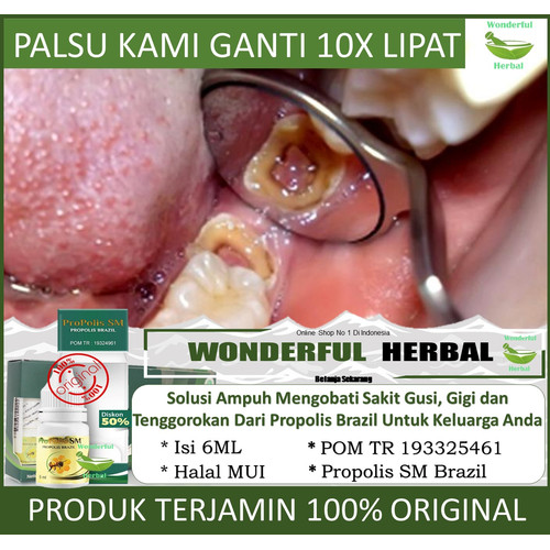 Jual Gusi Bengkak Untuk Anak Pembersih Plak Gigi Gigi Ngilu Propolis Sm Kota Surabaya Wonderful Herbal Tokopedia