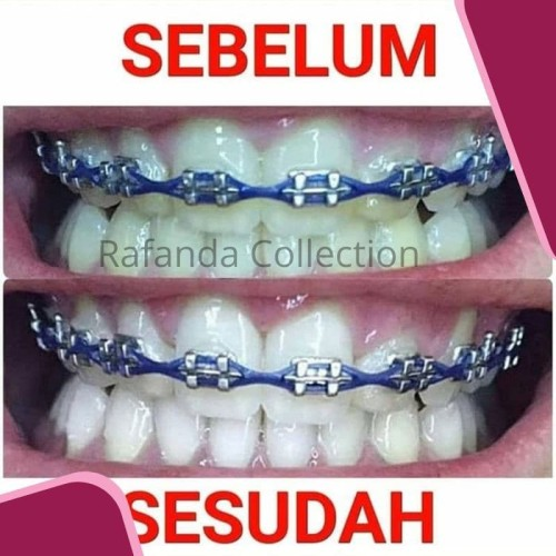 Jual Cara Memutihkan Gigi Hitam Cara Memutihkan Gigi Secara Alami Bandung Toko Online Senar Tokopedia