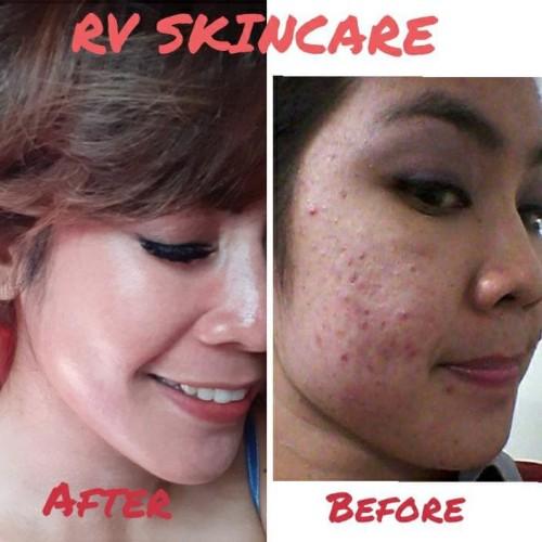 Foto Produk Paket RV wajib acne dari AnatasyaRVskincare