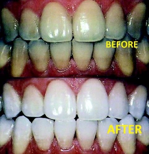 Jual Active Smile Teeth Whitening Home Bleaching Gel Kit Pemutih
