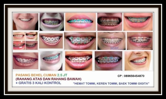 Jual Daftar Harga Cabut Gigi Pembersihan Karang Gigi Dan Tambal