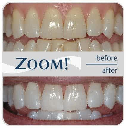 Jual Pemutih Gigi Herbal Alami Penghilang Kerak Gigi Kuning