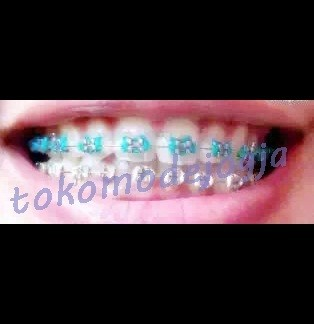 harga Behel gigi lepas pasang atas / bawah motif hello kitty ( helo kity ) Tokopedia.com