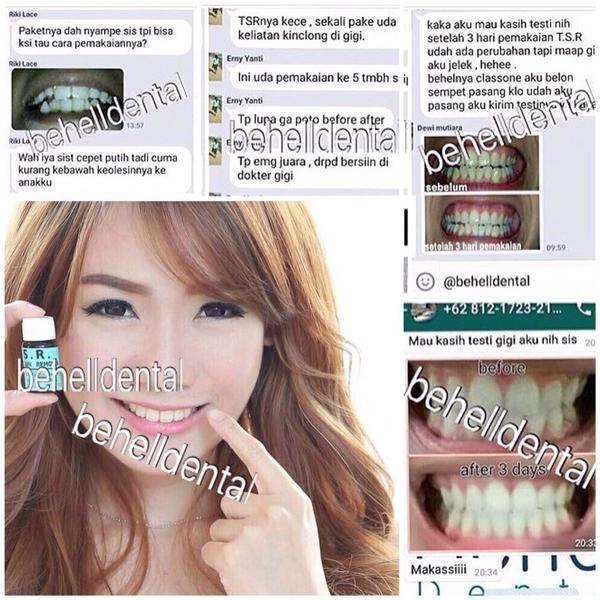 Jual Pemutih Gigi Terbaik   Ampuh   Aman   Obat Penghilang Karang ... 7de34259fd
