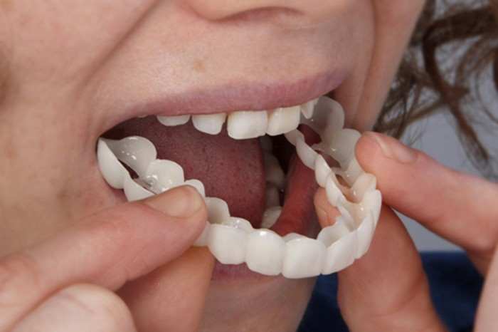 Jual Snap On Smile (Gigi Kelinci Hollywood Teeth) veneer lepasan ... 8a2f59da15