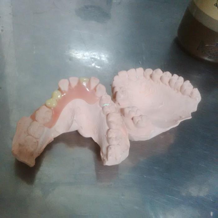 Jual Gigi Palsu Lepasan Flexi Denture - ABI Dental Lab  5eec8c3624